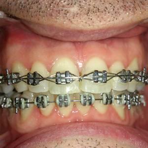 Nagusientzako ortodontzia