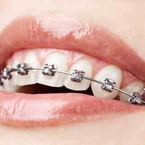 Ortodontzia